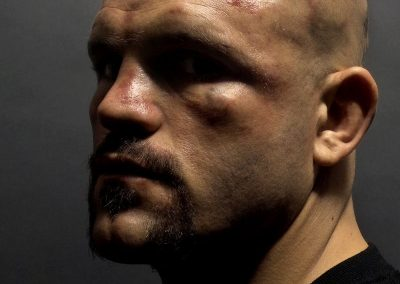 "Kevin Lynch - ""Chuck Liddell after UFC 43fight"""